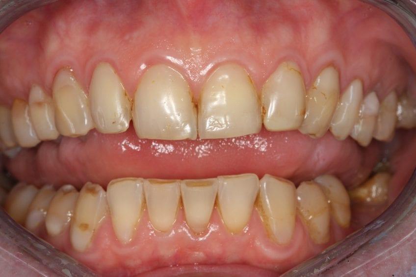 Abgenutzte Zähne | Zahnarzt Berlin Mitte