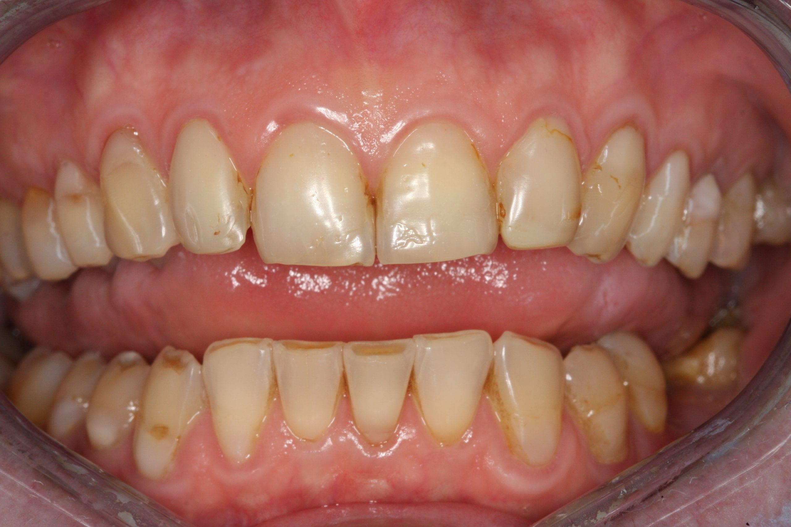 Zähne schlechte Kann man