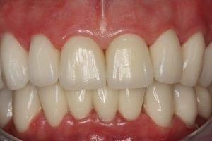 Abgenutzte Zähne rekonstruiert | Zahnarzt Berlin Mitte