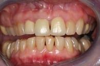 Bisshebung von Vollkeramikversorgung | Zahnarzt Berlin