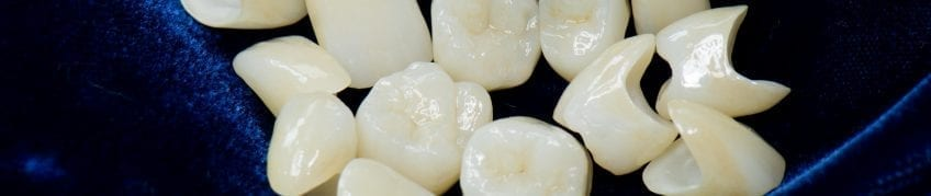 Zahnersatz aus dem Zahntechnik-Labor | Zahnarzt Berlin