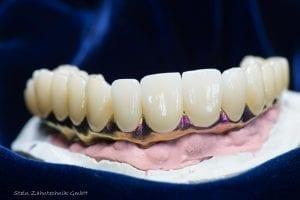 Prothese Zahntechnik | Zahnarzt Berlin