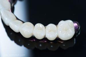 Prothese aus dem Zahntechnik-Labor | Zahnarzt Berlin