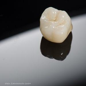 Zahnkrone aus dem Zahntechnik-Labor | Zahnarzt Berlin