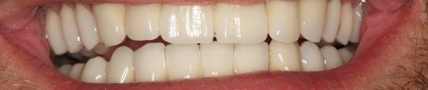 Kiefergelenke | Zahnarzt Berlin