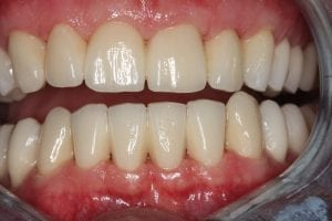 Kiefergelenksfall – Bisshebung | Zahnarzt Berlin