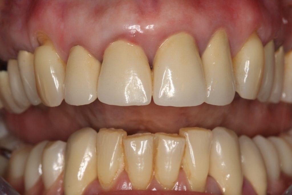 Kombiniert herausnehmbarer und festsitzender Zahnersatz | Zahnarzt Berlin