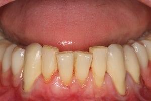 Kombiniert festsitzender und herausnehmbarer Zahnersatz | Zahnarzt Berlin
