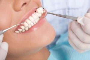 Mit der Harmonieschiene zu nachhaltig schönen, geraden Zähnen | Zahnarzt Berlin