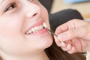 Veneers – Keramische Verblendschalen mit großer Wirkung | Zahnarzt Berlin