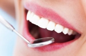 Professionelle Prophylaxe in der Zahnarztpraxis | Zahnarzt Berlin