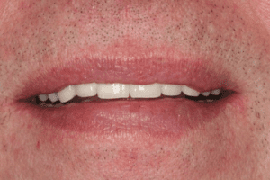 Bisshebung / 4-Quadrantensanierung - Behandlungsbeispiel - Zahnarzt Berlin